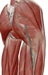 坐骨神経痛1